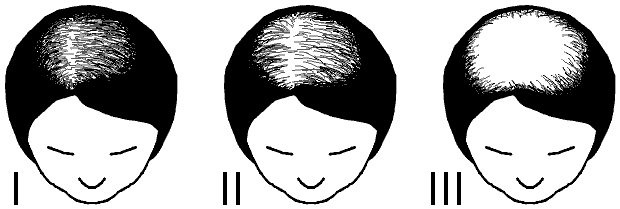 Ludwid_scale_for_female_pattern_baldness