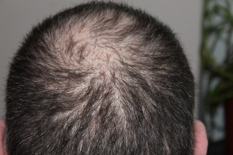 Why (White) Men Suffer More from Hair Loss