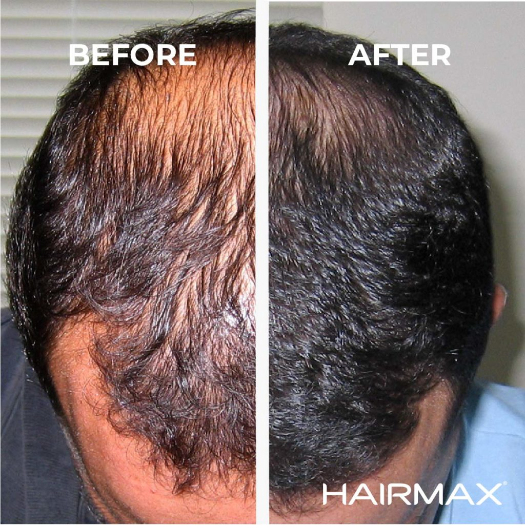hairmax laser comb before after