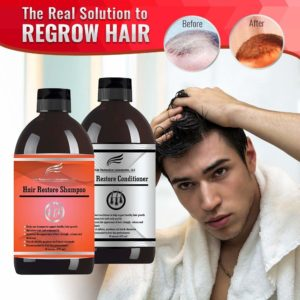 the best hair loss shampoo